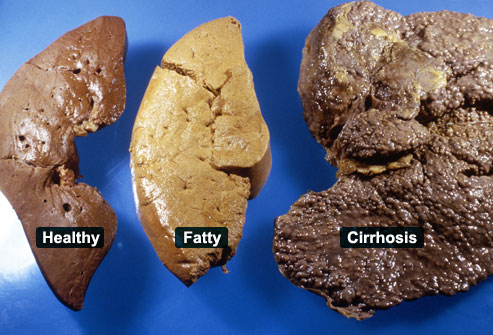 princ_rm_photo_of_liver_examples